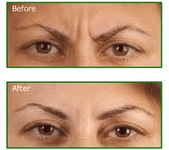 Botox Injection-Botox Long Island
