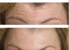 Botox Treatment-Botox Prices